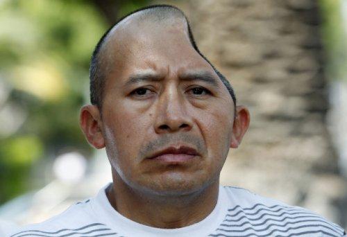 美国一男子劝架被削掉半边脑颅 获天价赔偿(图)