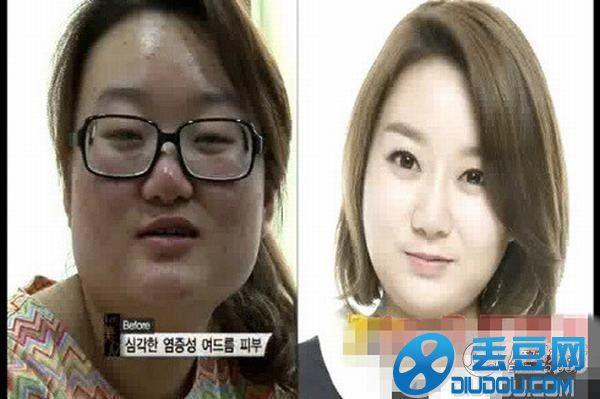 【整容前后对比图】-韩国整容节目 韩国整容综艺节目叫什么图片